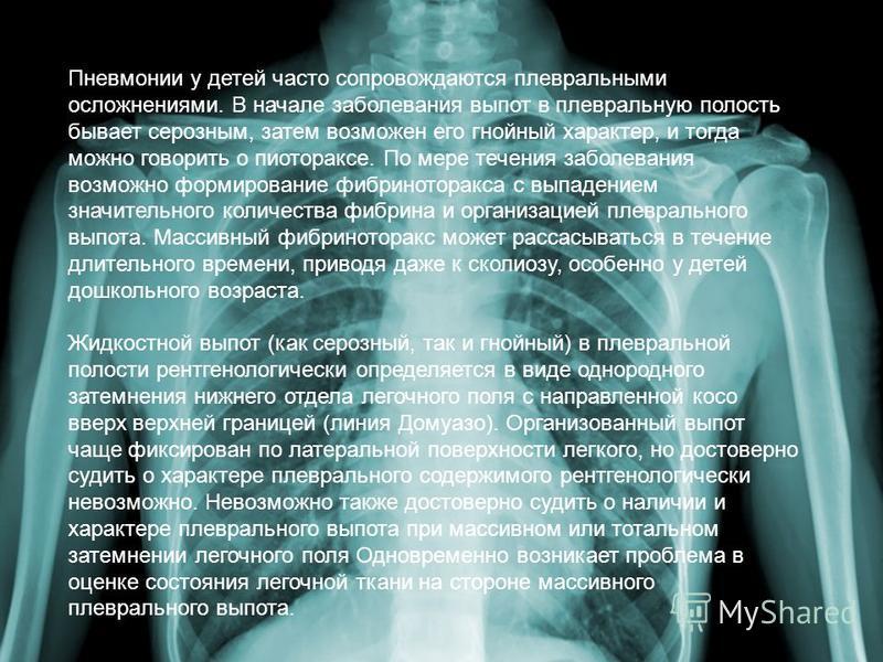 Пневмонии у детей часто сопровождаются плевральными осложнениями. В начале заболевания выпот в плевральную полость бывает серозным, затем возможен его гнойный характер, и тогда можно говорить о пиотораксе. По мере течения заболевания возможно формиро