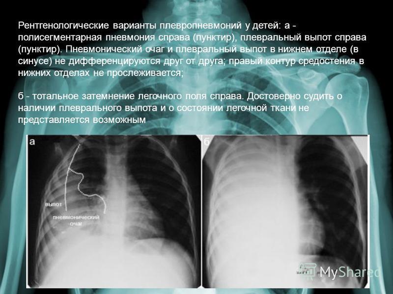 Рентгенологические варианты плевропневмоний у детей: а - полисегментарная пневмония справа (пунктир), плевральный выпот справа (пунктир). Пневмонический очаг и плевральный выпот в нижнем отделе (в синусе) не дифференцируются друг от друга; правый кон