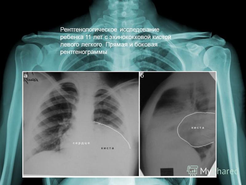 Рентгенологическое исследование ребенка 11 лет с эхинококковой кистой левого легкого. Прямая и боковая рентгенограммы