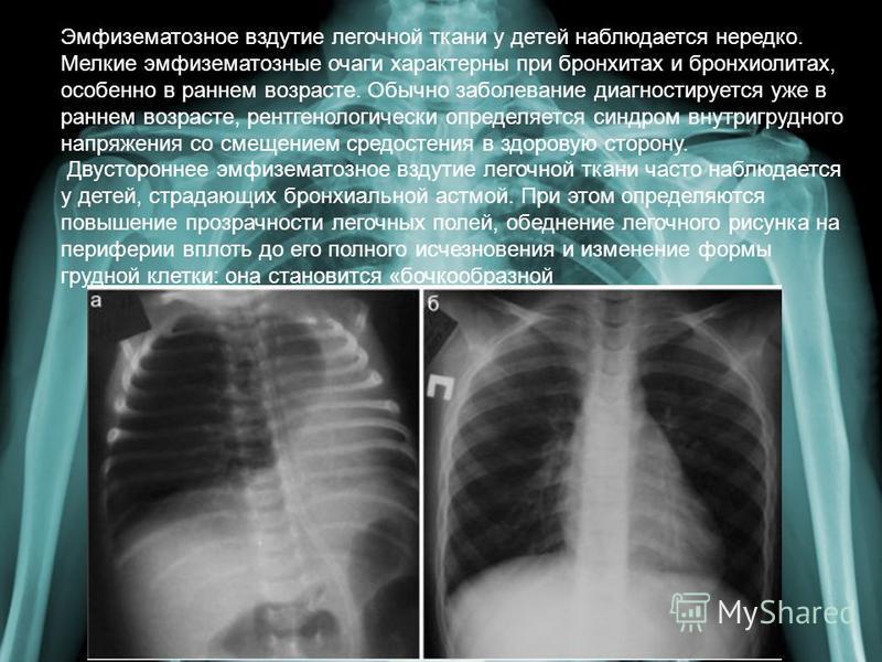 Эмфизематозное вздутие легочной ткани у детей наблюдается нередко. Мелкие эмфизематозные очаги характерны при бронхитах и бронхиолитах, особенно в раннем возрасте. Обычно заболевание диагностируется уже в раннем возрасте, рентгенологически определяет