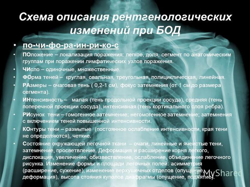 Схема описания рентгенологических изменений при БОД по-чи-фо-ра-ин-ри-ко-с ПОложение – локализация поражения: легкое, доля, сегмент по анатомическим группам при поражении лимфатических узлов поражения. ЧИсло – одиночные, множественные. ФОрма теней –
