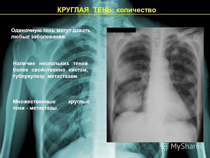 КРУГЛАЯ ТЕНЬ: количество Одиночную тень могут давать любые заболевания. Наличие нескольких теней более свойственно кистам, туберкулезу, метастазам. Множественные круглые тени - метастазы.