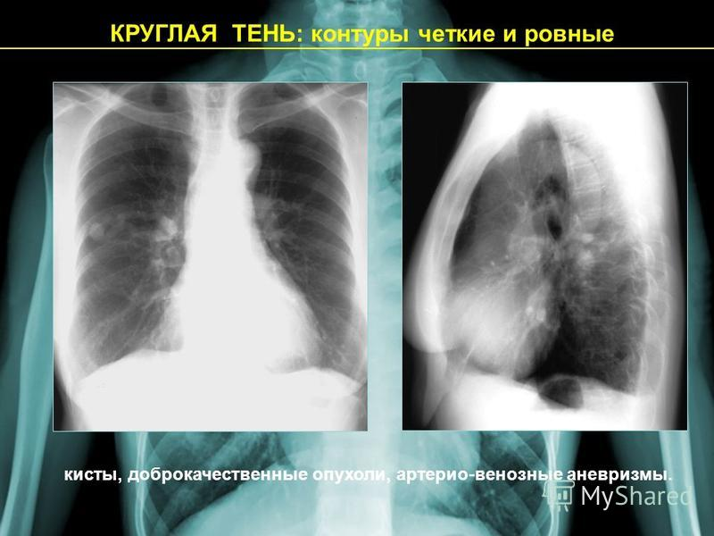 КРУГЛАЯ ТЕНЬ: контуры четкие и ровные кисты, доброкачественные опухоли, артерио-венозные аневризмы.