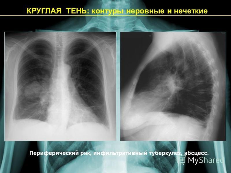 КРУГЛАЯ ТЕНЬ: контуры неровные и нечеткие Периферический рак, инфильтративный туберкулез, абсцесс.