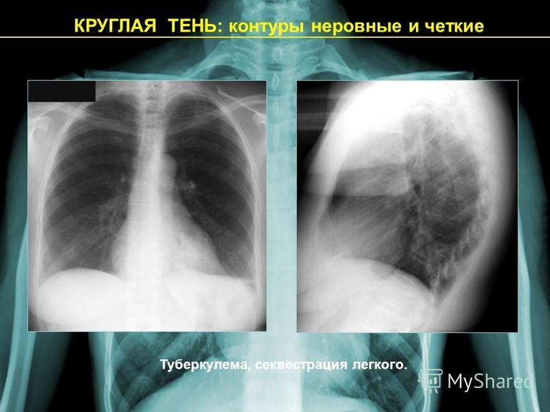 КРУГЛАЯ ТЕНЬ: контуры неровные и четкие Туберкулема, секвестрация легкого.
