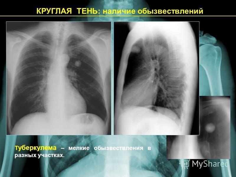 КРУГЛАЯ ТЕНЬ: наличие обызвествлений Т уберкулема – мелкие обызвествления в разных участках.