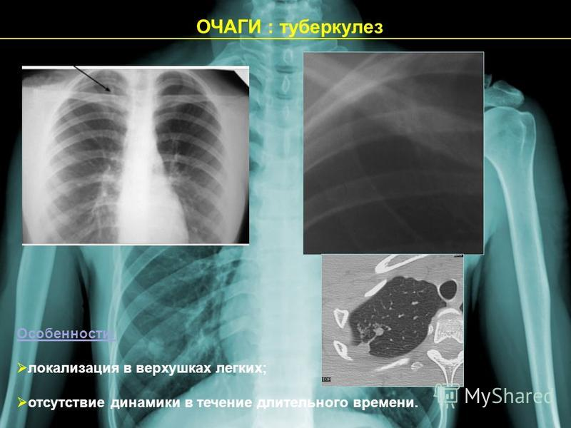 ОЧАГИ : туберкулез Особенности: локализация в верхушках легких; отсутствие динамики в течение длительного времени.