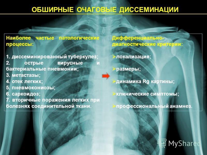 ОБШИРНЫЕ ОЧАГОВЫЕ ДИССЕМИНАЦИИ Наиболее частые патологические процессы: 1. диссеминированный туберкулез; 2. острые вирусные и бактериальные пневмонии; 3. метастазы; 4. отек легких; 5. пневмокониозы; 6. саркоидоз; 7. вторичные поражения легких при бол