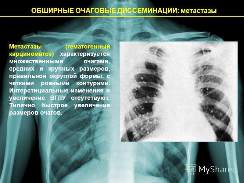 ОБШИРНЫЕ ОЧАГОВЫЕ ДИССЕМИНАЦИИ: метастазы Метастазы (гематогенный карциноматоз) характеризуется множественными очагами, средних и крупных размеров, правильной округлой формы, с четкими ровными контурами. Интерстициальные изменения и увеличение ВГЛУ о