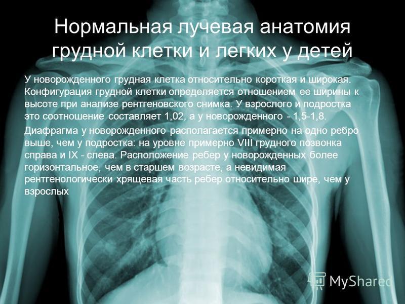 Нормальная лучевая анатомия грудной клетки и легких у детей У новорожденного грудная клетка относительно короткая и широкая. Конфигурация грудной клетки определяется отношением ее ширины к высоте при анализе рентгеновского снимка. У взрослого и подро