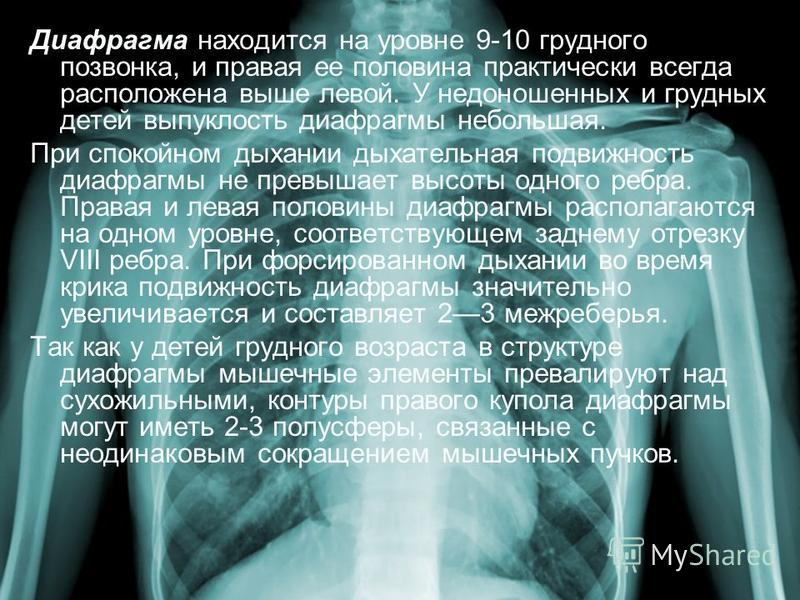Диафрагма находится на уровне 9-10 грудного позвонка, и правая ее половина практически всегда расположена выше левой. У недоношенных и грудных детей выпуклость диафрагмы небольшая. При спокойном дыхании дыхательная подвижность диафрагмы не превышает