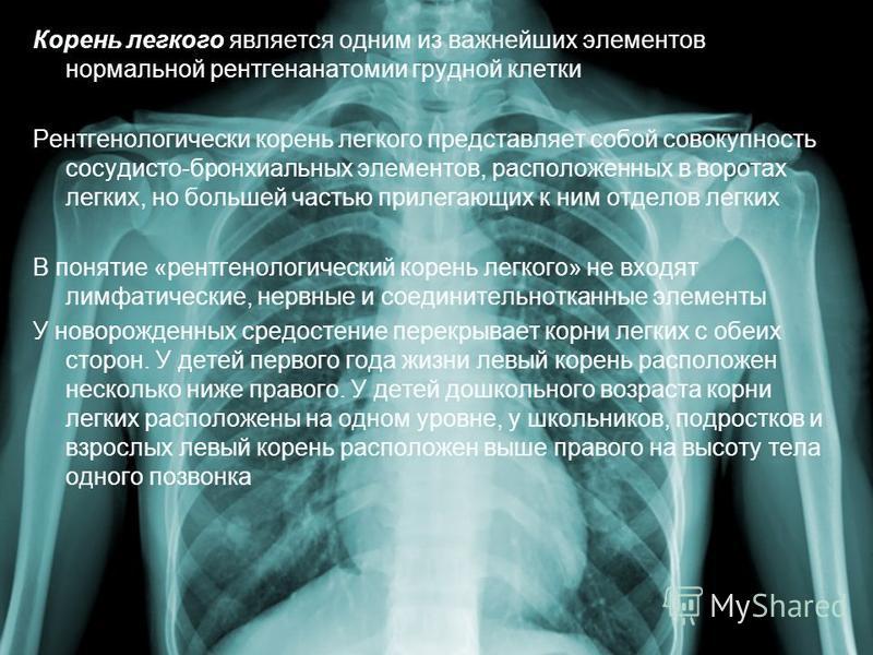 Корень легкого является одним из важнейших элементов нормальной рентгенанатомии грудной клетки Рентгенологически корень легкого представляет собой совокупность сосудисто-бронхиальных элементов, расположенных в воротах легких, но большей частью прилег