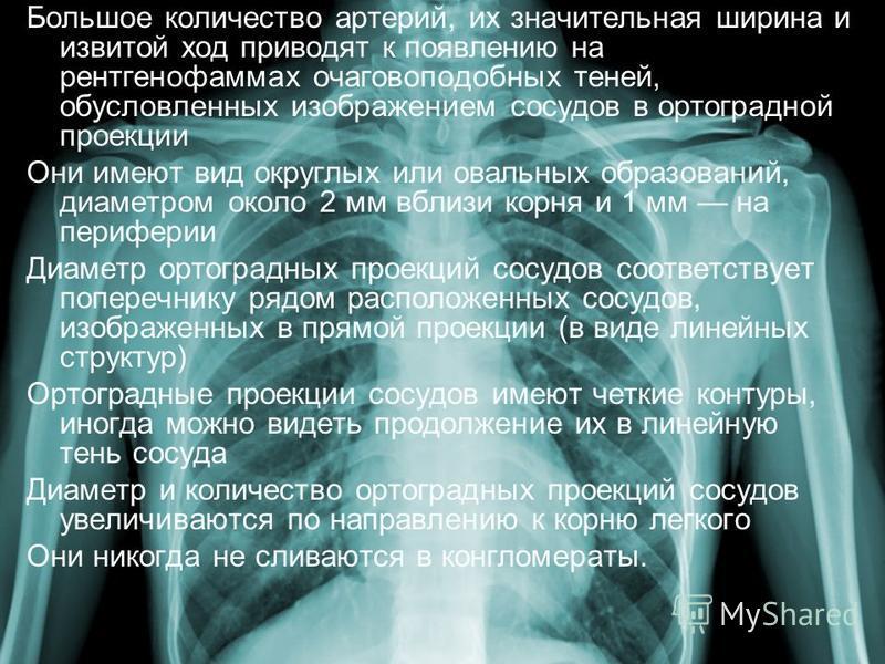 Большое количество артерий, их значительная ширина и извитой ход приводят к появлению на рентгенофаммах очаговоподобных теней, обусловленных изображением сосудов в ортоградной проекции Они имеют вид округлых или овальных образований, диаметром около