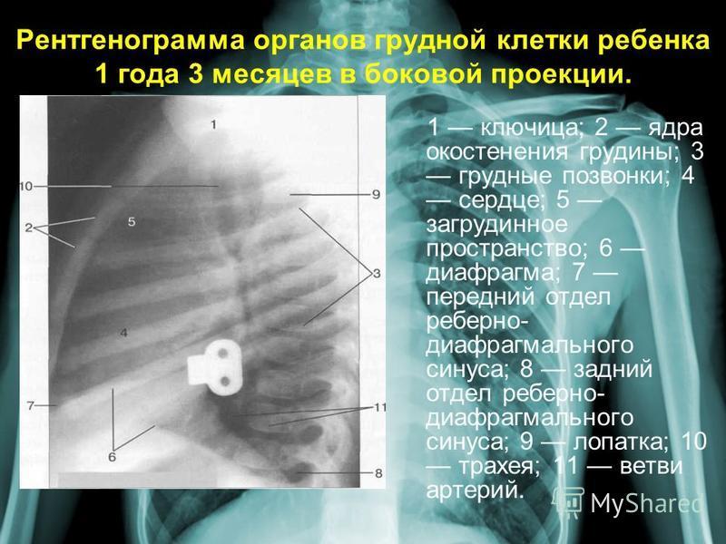 Рентгенограмма органов грудной клетки ребенка 1 года 3 месяцев в боковой проекции. 1 ключица; 2 ядра окостенения грудины; 3 грудные позвонки; 4 сердце; 5 загрудинное пространство; 6 диафрагма; 7 передний отдел реберно- диафрагмального синуса; 8 задни