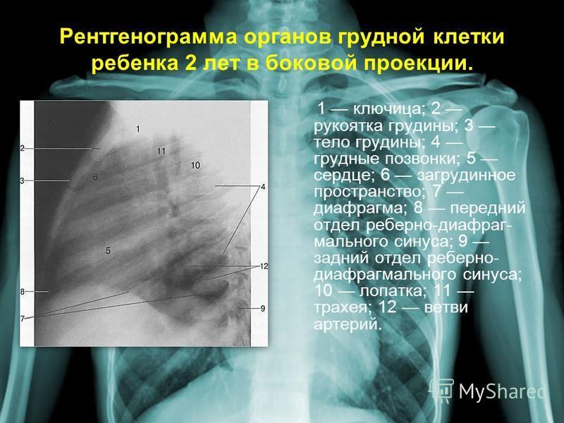 Рентгенограмма органов грудной клетки ребенка 2 лет в боковой проекции. 1 ключица; 2 рукоятка грудины; 3 тело грудины; 4 грудные позвонки; 5 сердце; 6 загрудинное пространство; 7 диафрагма; 8 передний отдел реберно-диафраг- мального синуса; 9 задний