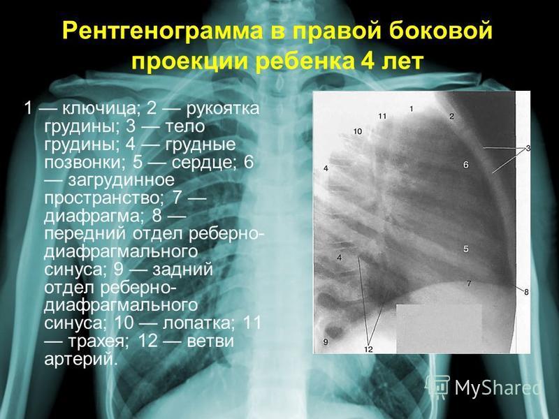 Рентгенограмма в правой боковой проекции ребенка 4 лет 1 ключица; 2 рукоятка грудины; 3 тело грудины; 4 грудные позвонки; 5 сердце; 6 загрудинное пространство; 7 диафрагма; 8 передний отдел реберно- диафрагмального синуса; 9 задний отдел реберно- диа