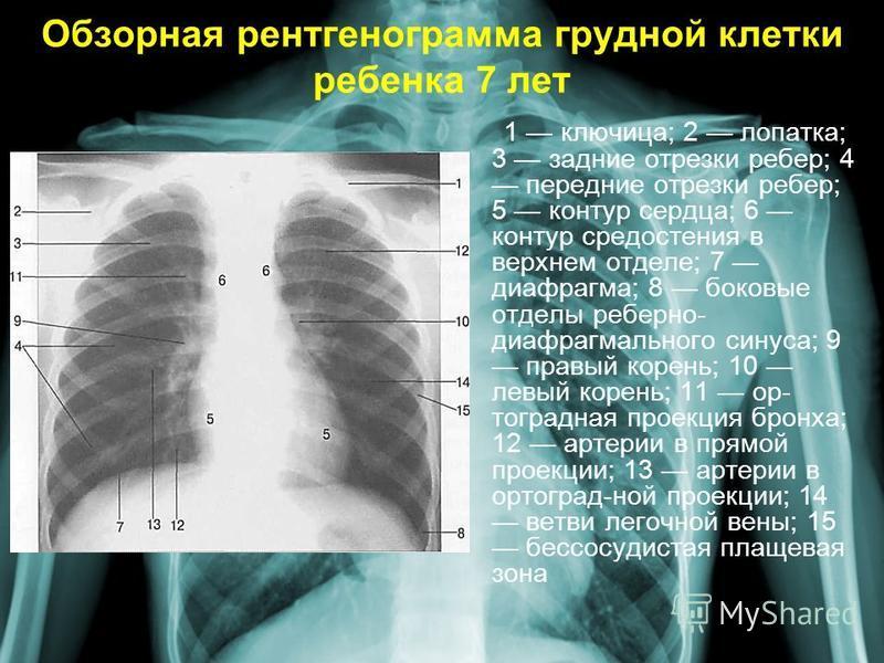 Обзорная рентгенограмма грудной клетки ребенка 7 лет 1 ключица; 2 лопатка; 3 задние отрезки ребер; 4 передние отрезки ребер; 5 контур сердца; 6 контур средостения в верхнем отделе; 7 диафрагма; 8 боковые отделы реберно- диафрагмального синуса; 9 прав