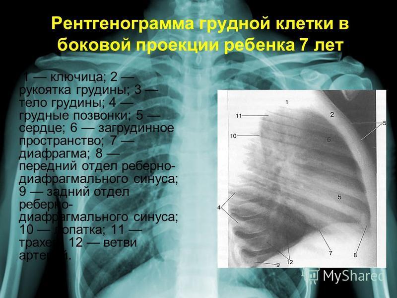 Рентгенограмма грудной клетки в боковой проекции ребенка 7 лет 1 ключица; 2 рукоятка грудины; 3 тело грудины; 4 грудные позвонки; 5 сердце; 6 загрудинное пространство; 7 диафрагма; 8 передний отдел реберно- диафрагмального синуса; 9 задний отдел ребе