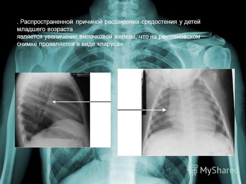 . Распространенной причиной расширения средостения у детей младшего возраста является увеличение вилочковой железы, что на рентгеновском снимке проявляется в виде «паруса»