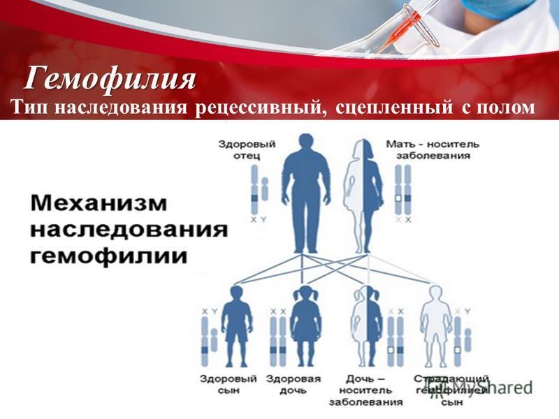 Гемофилия Тип наследования рецессивный, сцепленный с полом