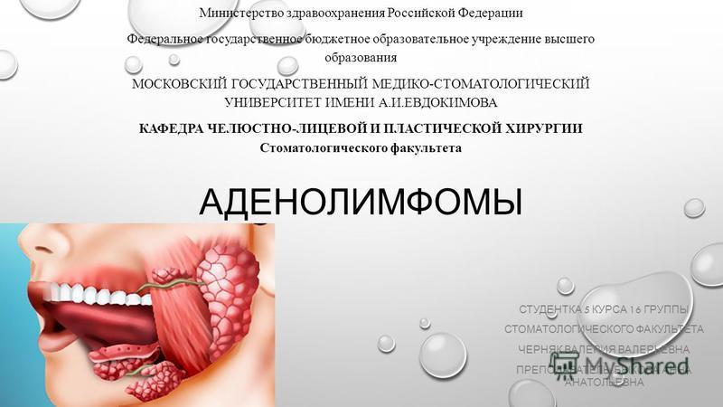 АДЕНОЛИМФОМЫ СТУДЕНТКА 5 КУРСА 16 ГРУППЫ СТОМАТОЛОГИЧЕСКОГО ФАКУЛЬТЕТА ЧЕРНЯК ВАЛЕРИЯ ВАЛЕРЬЕВНА ПРЕПОДАВАТЕЛЬ : БЫКОВА АННА АНАТОЛЬЕВНА Министерство здравоохранения Российской Федерации Федеральное государственное бюджетное образовательное учреждени