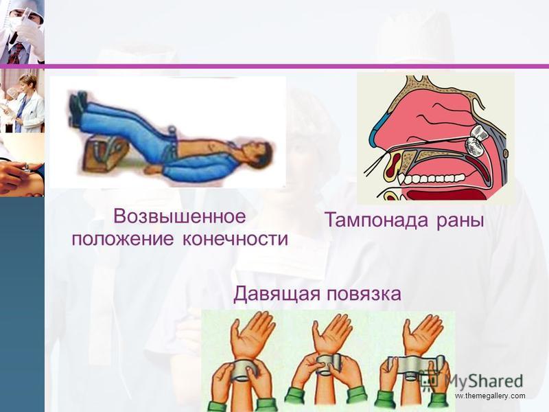 www.themegallery.com Давящая повязка Возвышенное положение конечности Тампонада раны