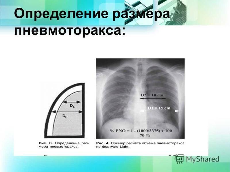 Определение размера пневмоторакса: