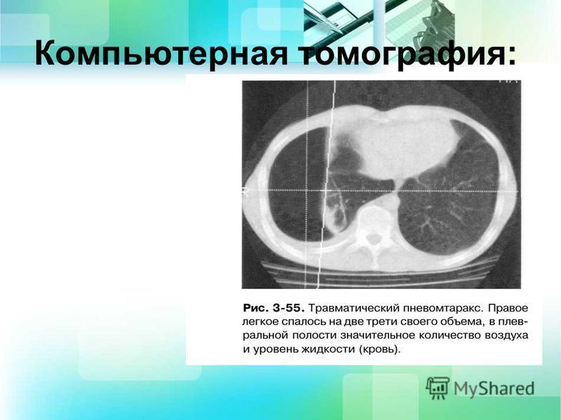 Компьютерная томография: