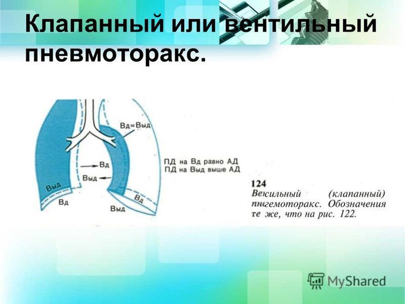 Клапанный или вентильный пневмоторакс.