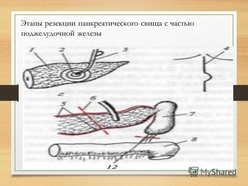 Этапы резекции панкреатического свища с частью поджелудочной железы