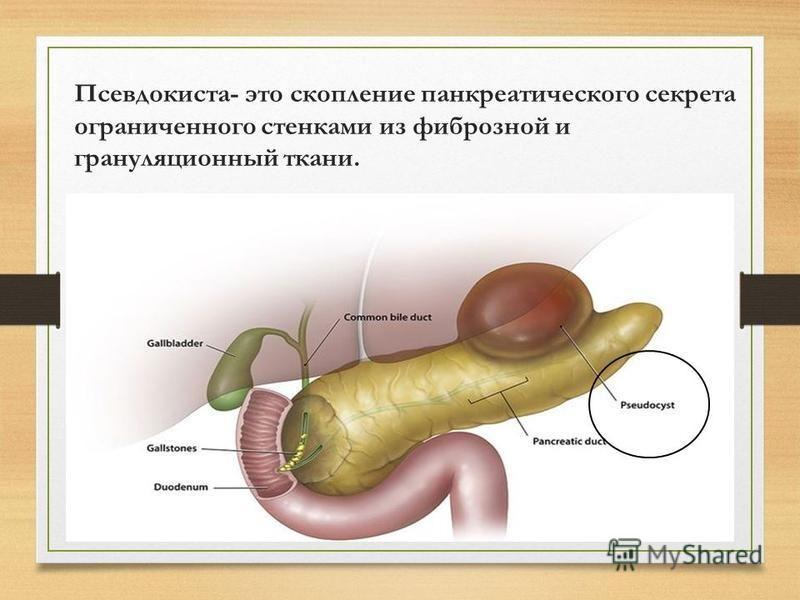 Псевдокиста- это скопление панкреатического секрета ограниченного стенками из фиброзной и грануляционный ткани.