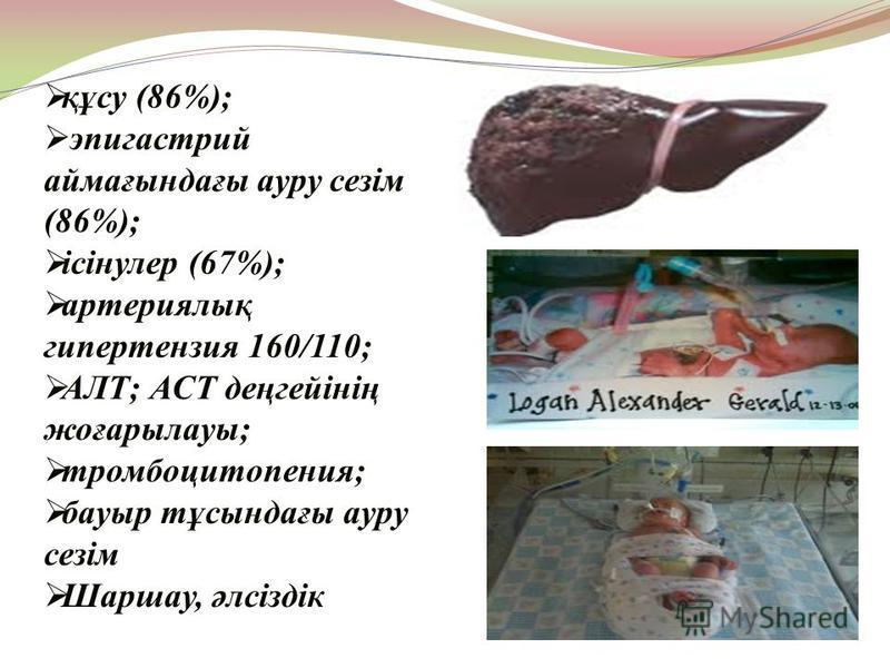 құсу (86%); эпигастрий аймағындағы ауру сезім (86%); ісінулер (67%); артериялық гипертензия 160/110; АЛТ; АСТ деңгейінің жоғарылауы; тромбоцитопения; бауыр тұсындағы ауру сезім Шаршау, әлсіздік