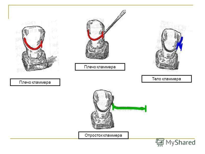 Плечо кламмера Тело кламмера Отросток кламмера