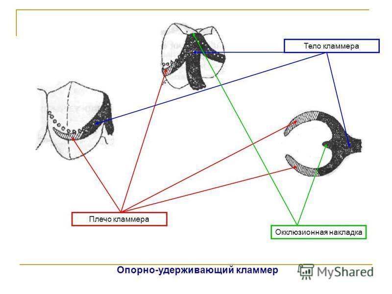 Плечо кламмера Тело кламмера Окклюзионная накладка Опорно-удерживающий кламмер