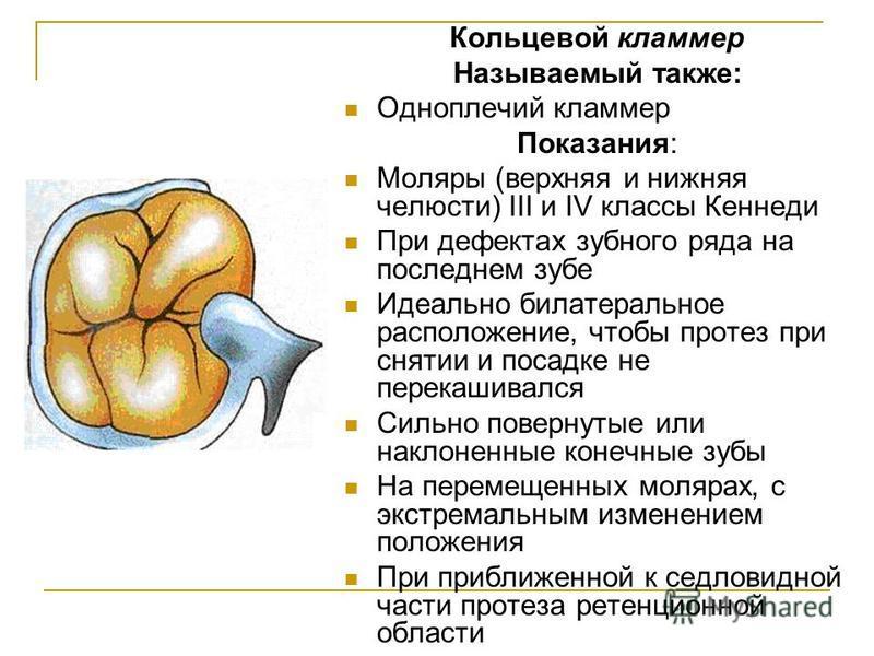 Кольцевой кламмер Называемый также: Одноплечий кламмер Показания: Моляры (верхняя и нижняя челюсти) III и IV классы Кеннеди При дефектах зубного ряда на последнем зубе Идеально билатеральное расположение, чтобы протез при снятии и посадке не перекаш