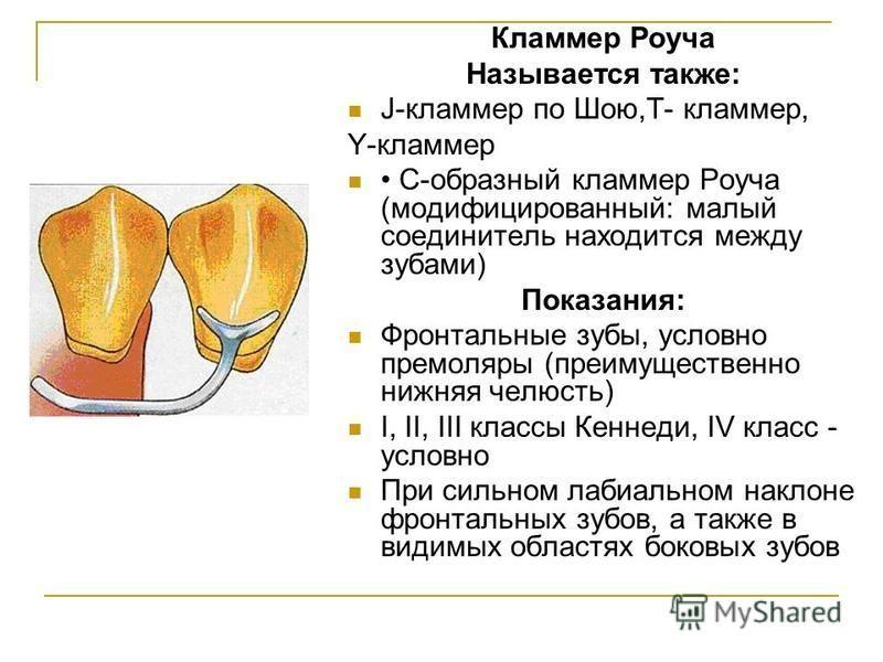 Кламмер Роуча Называется также: J-кламмер по Шою,T- кламмер, Y-кламмер С-образный кламмер Роуча (модифицированный: малый соединитель находится между зубами) Показания: Фронтальные зубы, условно премоляры (преимущественно нижняя челюсть) I, II, III к