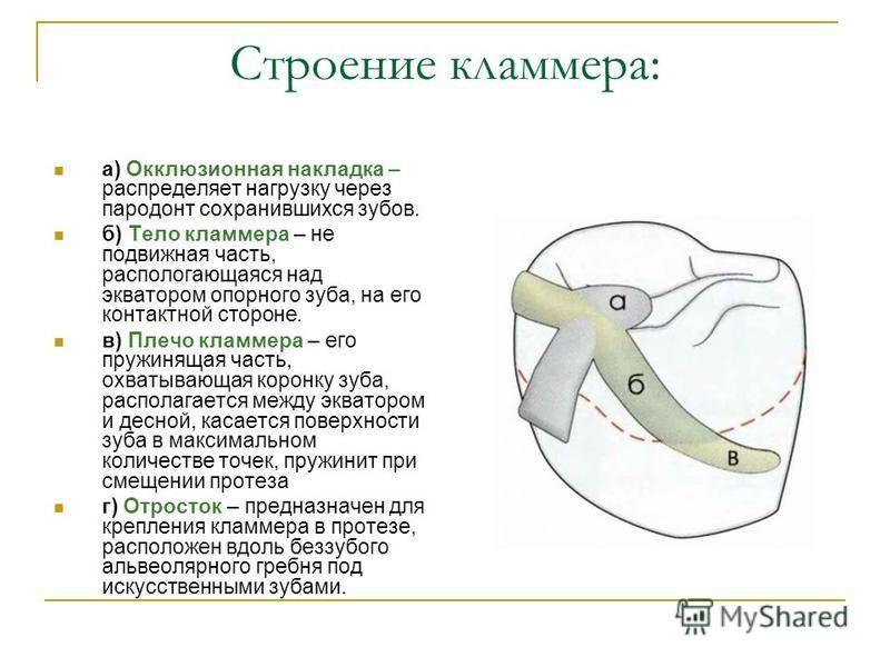 Строение кламмера: а) Окклюзионная накладка – распределяет нагрузку через пародонт сохранившихся зубов. б) Тело кламмера – не подвижная часть, располагающаяся над экватором опорного зуба, на его контактной стороне. в) Плечо кламмера – его пружинящая