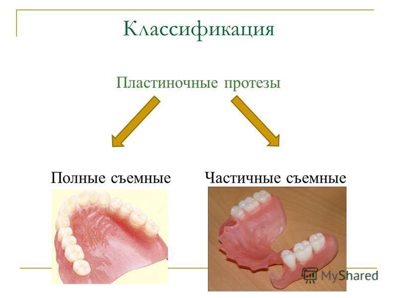 Классификация Пластиночные протезы Полные съемные Частичные съемные