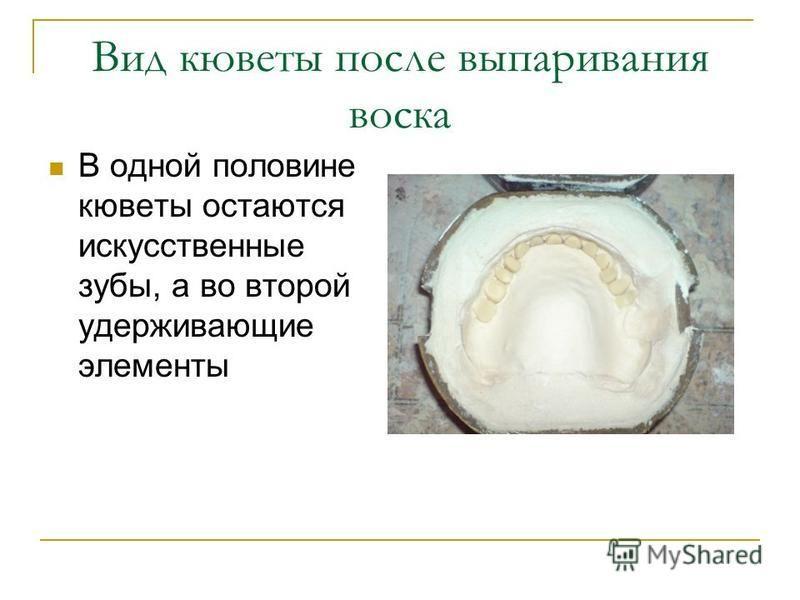 В одной половине кюветы остаются искусственные зубы, а во второй удерживающие элементы Вид кюветы после выпаривания воска
