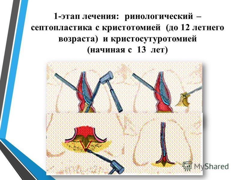 1-этап лечения: кинологический – септопластика с кристотомией (до 12 летнего возраста) и кристосутуротомией (начиная с 13 лет)