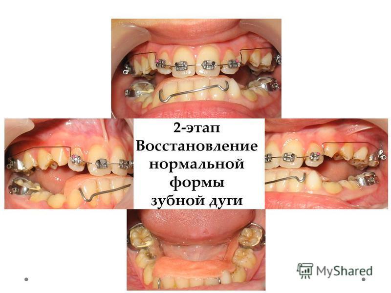 2-этап Восстановление нормальной формы зубной дуги