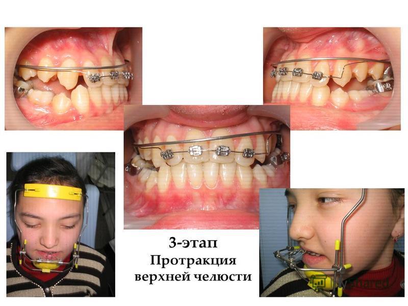 3-этап Протракция верхней челюсти