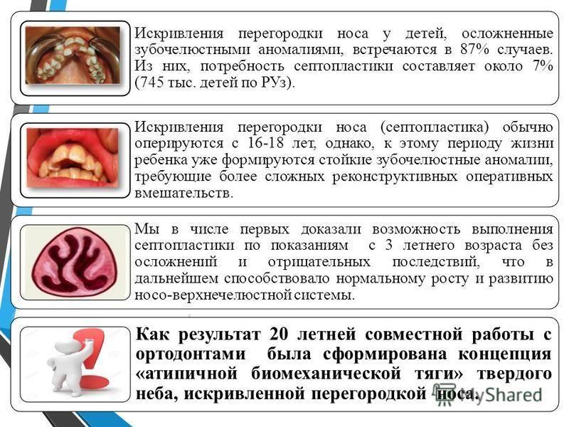 Искривления перегородки носа у детей, осложненные зубочелюстными аномалиями, встречаются в 87% случаев. Из них, потребность септопластики составляет около 7% (745 тыс. детей по РУз). Искривления перегородки носа (септопластика) обычно оперируются с 1