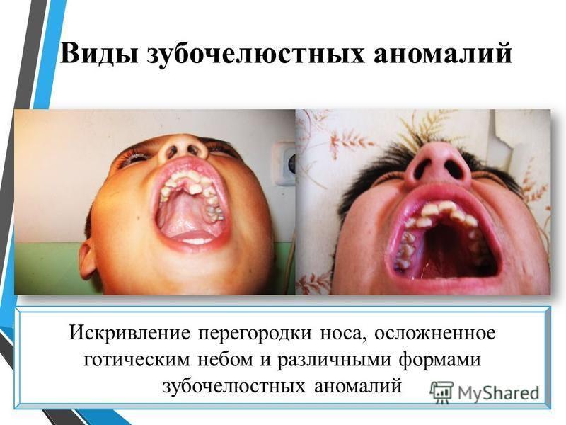 Виды зубочелюстных аномалий Искривление перегородки носа, осложненное готическим небом и различными формами зубочелюстных аномалий