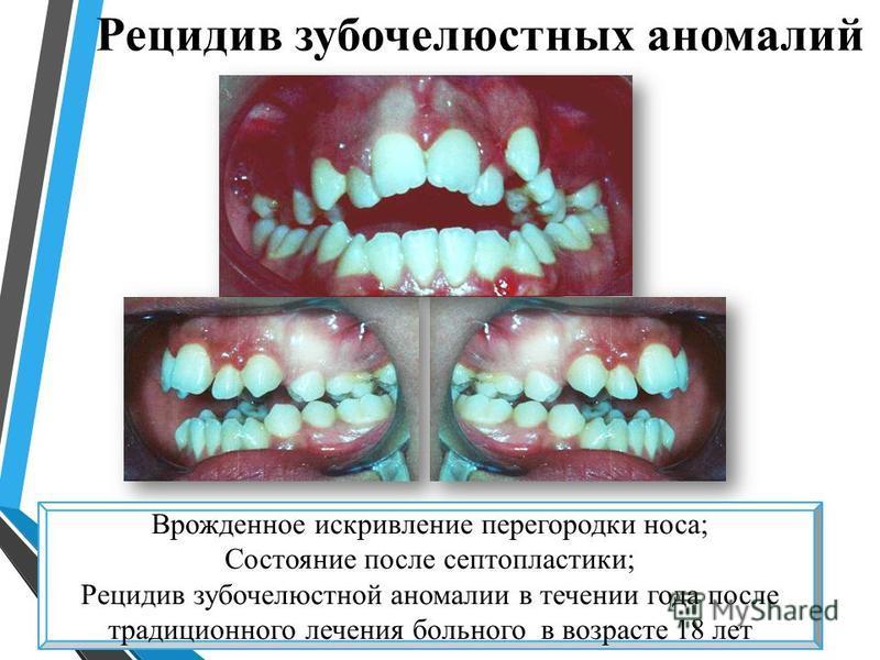 Рецидив зубочелюстных аномалий Врожденное искривление перегородки носа; Состояние после септопластики; Рецидив зубочелюстной аномалии в течении года после традиционного лечения больного в возрасте 18 лет