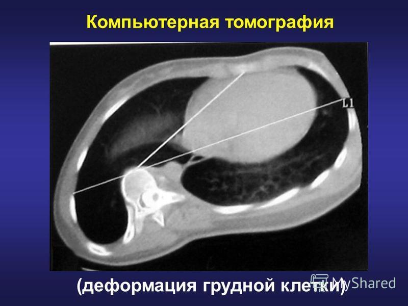 Компьютерная томография (деформация грудной клетки)
