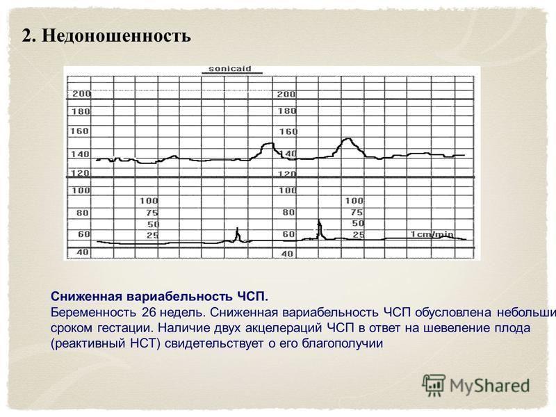 2. Недоношенность Сниженная вариабельность ЧСП. Беременность 26 недель. Сниженная вариабельность ЧСП обусловлена небольшим сроком гестации. Наличие двух акцелерации ЧСП в ответ на шевеление плода (реактивный НСТ) свидетельствует о его благополучии