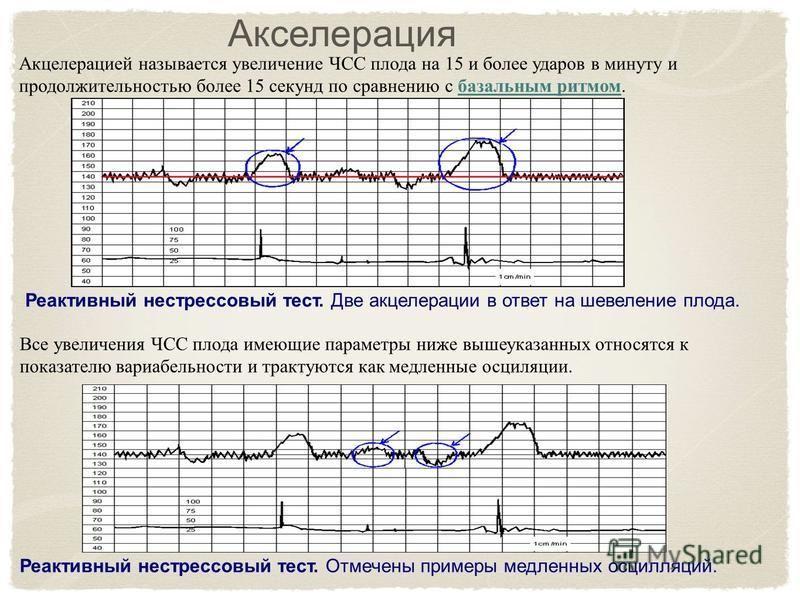 Акселерация Акцелерацией называется увеличение ЧСС плода на 15 и более ударов в минуту и продолжительностью более 15 секунд по сравнению с базальным ритмом. Реактивный нестрессовый тест. Две акцелерации в ответ на шевеление плода. Все увеличения ЧСС