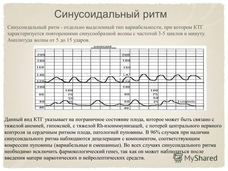 Синусоидальный ритм - отдельно выделенный тип вариабельности, при котором КТГ характеризуется повторениями синусообразной волны с частотой 3-5 циклов в минуту. Амплитуда волны от 5 до 15 ударов. Синусоидальный ритм Данный вид КТГ указывает на пограни