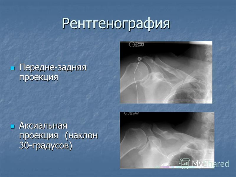 Рентгенография Передне-задняя проекция Передне-задняя проекция Аксиальная проекция (наклон 30-градусов) Аксиальная проекция (наклон 30-градусов)